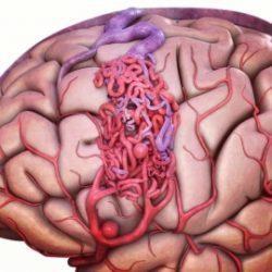 ضایعات پیچیده مغزی avm  مغزی