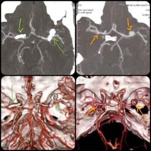 جراحی آنوریسم مغزی - بیماری با چند آنوریسم