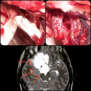 تومور-مغزی-اپیدرموئید