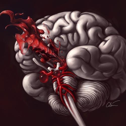 به دنبال پارگی آنوریسم مغزی، خون با شدت زیاد داخل جمجمه و مغز منتشر میگردد.