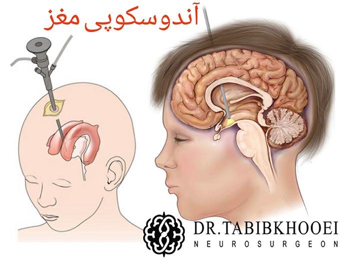 روش نوین درمان هیدروسفالی آندوسکوپی مغز