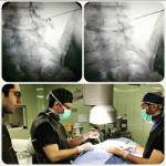 جراحی لیزری دیسک کمر