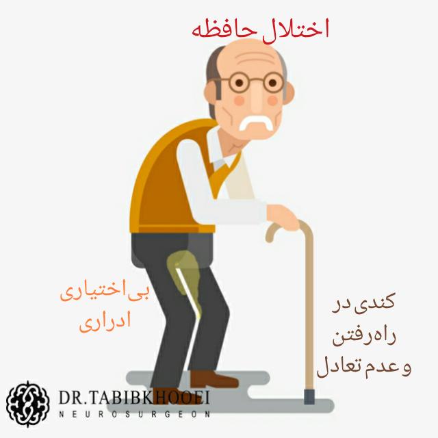 سه علامت شایع هیدروسفالی مزمن در بالغین و افراد مسن