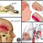عوارض جراحی آنوریسم مغزی