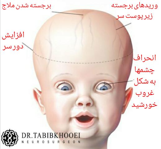 علائم هیدروسفالی در نوزادان و شیرخواران