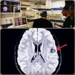 تومور مغزی-ناوبری در مغز