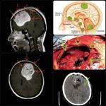 تومور مغزی مننژیوم بسیار بزرگ