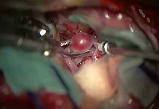 عمل جراحی آنوریسم