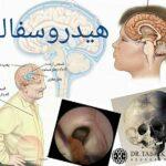 هیدروسفالی چیست ؟ علل , تشخیص و درمان