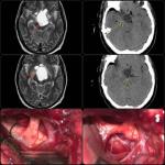 تومور مغزی هیپوتالاموس