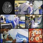 جراحی کاورنوم مغزی در حالی که بیمار بیدار است