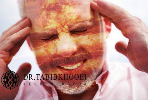 سردرد شدید ناگهانی، علامت اصلی پارگی آنوریسم مغزی است.