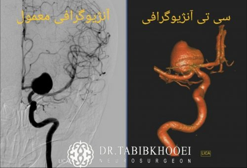 آنژیوگرافی معمول و سی تی آنژیوگرافی، روشهای تشخیص محل و شکل آنوریسم مغزی هستند.
