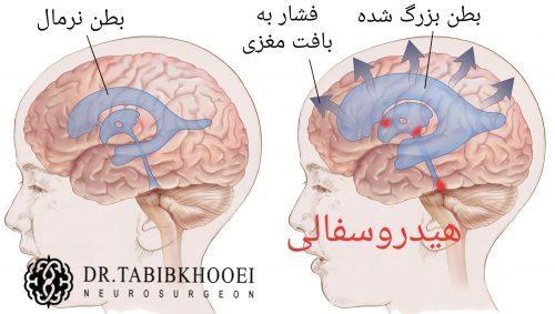 هیدروسفالی یا تجمع مایع مغزی نخاعی داخل جمجمه از عوارض خونریزی آنوریسم مغزی است.