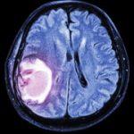 تومور های بدخیم مغز