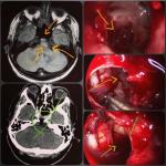 تومور مغزی کوردوما – به روش آندوسکوپی