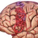 avm مغزی