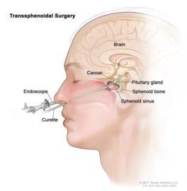 آدنوم هیپوفیز-جراحی از طریق بینی
