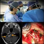 جراحی تومور مغزی و کاشت شنوایی ساقه مغز