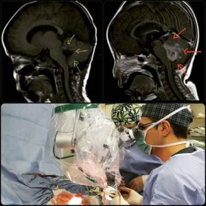 جراحی مدولوبلاستوم، تومور مغزی بدخیم بطن چهارم مغز