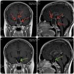 جراحی آدنوم هیپوفیز از راه بینی