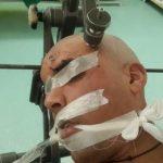 جراح مغز و اعصاب و ستون فقرات