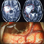 جراحی تومور مغزی خانم 50 ساله