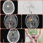 جراحی ضایعه عروقی مغزی