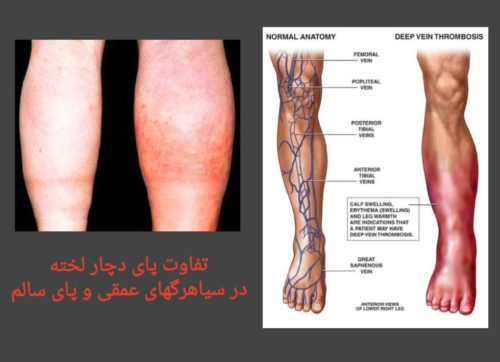 تورم در پاها بعد از جراحی تومور مغزی