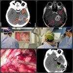 جراحی تومور مغزی مننژیوم در ناحیه ساقه مغز