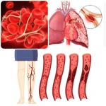 آمبولی چیست؟ عوامل بروز و روش های درمان کدام است؟