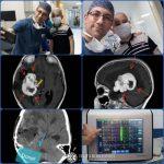 تومور مغزی بدخیم کودکان