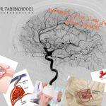 مراقبتهای بعد از جراحی آنوریسم مغزی