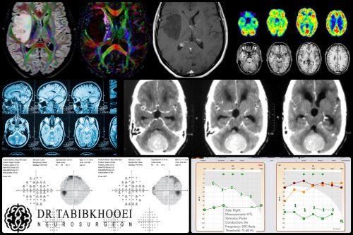 تشخیص تومور مغزی