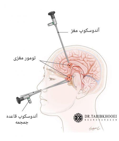 آندوسکوپی مغز و قاعده جمجمه
