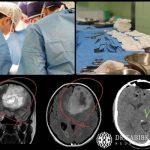 جراحی تومور مغزی گلیوبلاستوما