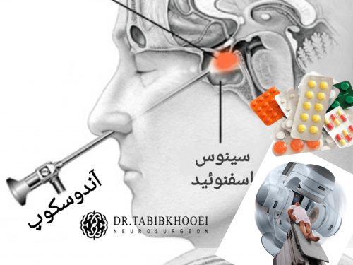 جراحی اندوسکوپی، دارو درمانی و پرتودرمانی در آدنوم هیپوفیز