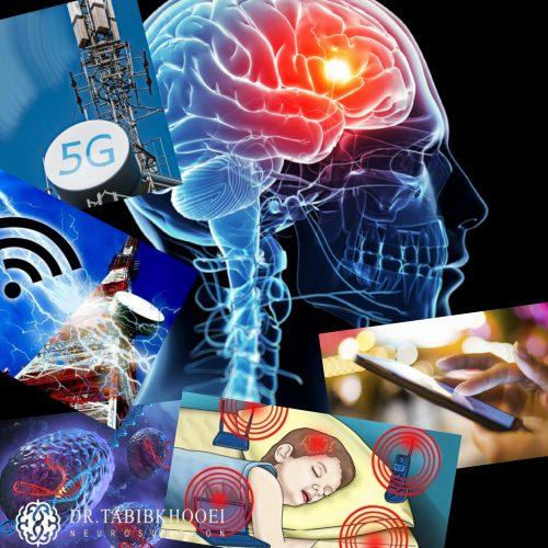 علل ایجاد تومورهای مغزی