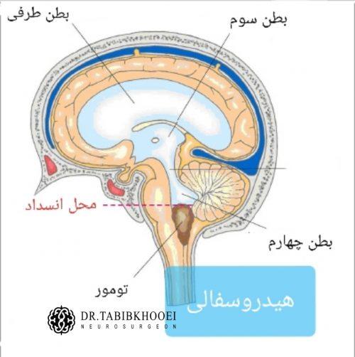 علت ایجاد هیدروسفالی در تومورهای مغزی