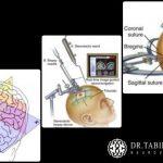 نمونه برداری مغزی