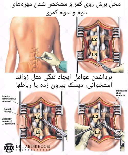 نمای شماتیک نحوه انجام جراحی تنگی کانال کمر