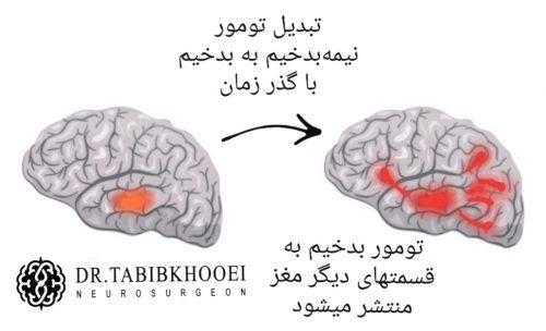 تبدیل تومور مغزی نیمه بدخیم به بدخیم نقش نمونه برداری در درمان تومورهای مغزی
