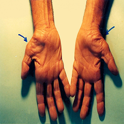 اصطلاح خواب رفتن دستها