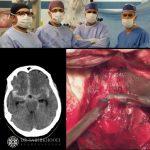جراحی آنوریسم مغزی پاره شده + فیلم جراحی