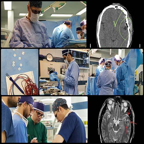 جراحی تومور مغزی