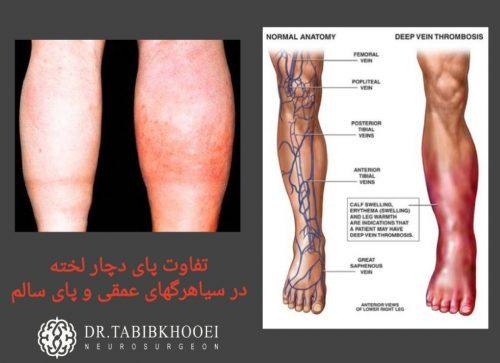 تورم، درد و قرمزی در پاها
