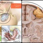 مننژیوم شایعترین تومور مغزی خوش خیم
