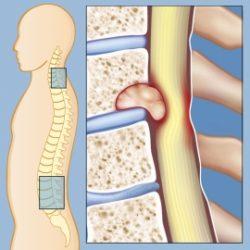 تومور های ستون فقرات