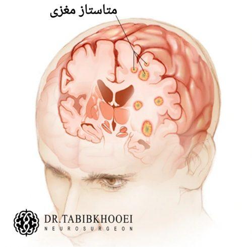متاستاز مغزی