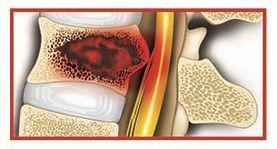 تومور های نخاع